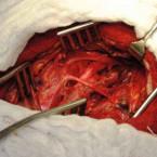 Karotická stenóza – diagnostika a léčba