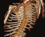 Naše zkušenosti se stabilizací hrudníku