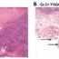 Infračervené lasery versus klasická technika při tonzilektomii