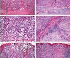 Hodnocení zánětlivé infiltrace (tumor infiltrujících lymfocytů – TIL) u maligního melanomu