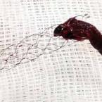 Endovaskulární léčba ischemické cévní mozkové příhody
