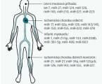 Význam mikroRNA v patofyziologii aterosklerózy a jejich možné klinické využití