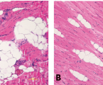 INTRAOPERATIVE FAT GRAFTING INTO THE PECTORALIS AND LATISSIMUS DORSI MUSCLES-NOVEL MODIFICATION OF AUTOLOGOUS BREAST RECONSTRUCTION WITH EXTENDED LATISSIMUS DORSI FLAP