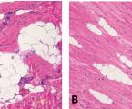 Přenos tukové tkáně do m. pectoralis a m. latissimus dorsi – nový přístup k autologní rekonstrukci prsu založený na laloku latissimus dorsi