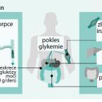 XIGDUO – fixní kombinace dapagliflozinu a metforminu