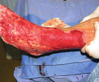 OUR EXPERIENCE WITH THE USE OF 40% BENZOIC ACID FOR NECRECTOMY IN DEEP BURNS