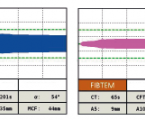 Úloha antitrombínu a tromboelastometrie v manažmente počínajúcej diseminovanej intravaskulárnej koagulopatie po peripartálnej hysterektómii