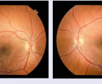 How we should monitor achild patient andadolescent withdiabetic retinopathy: case report of 20-years-old female patient and angio OCT