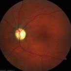 Přední ischemická optická neuropatie a okluze větve retinální tepny po transkatétrové okluzi foramen ovale – kazuistika