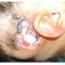Chirurgické komplikácie kochleárnej implantácie na Klinike ORL