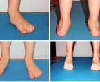 Screening pohybového systému školních dětí (7 až 12 let) vPraze