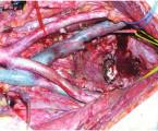 Kvalita života po extenzivních  pánevních operacích