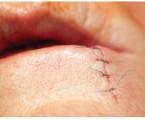Spinocelulární karcinom dolního rtu: naše zkušenosti apřehled literatury