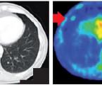 Vícenásobné nádorové onemocnění plic – kazuistika a přehled literatury