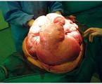 Obrovský děložní myom – kazuistika