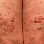 Diabetes mellitus and skin disorders