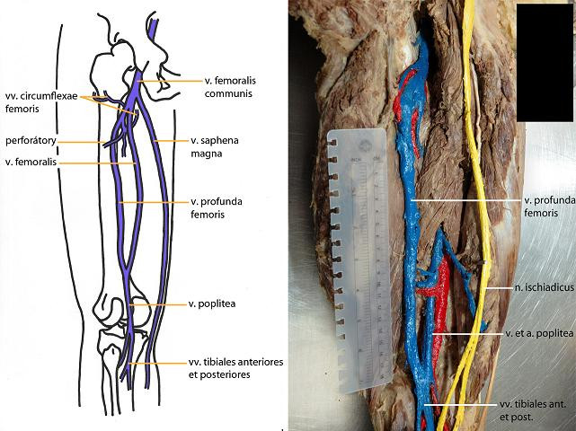 Variability Of The Deep Femoral Venous System Journal Of Czech