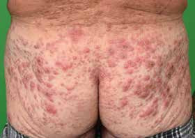 Indeterminate cell histiocytosis - disappearance of skin infiltration following electron beam therapy and an application of 2-chlorodeoxyadenosine: case report
