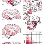 Pre-motorické a non-motorické príznaky Parkinsonovej choroby – taxonómia, klinická manifestácia a neuropatologické koreláty