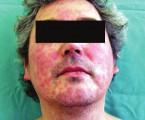 Kontaktní alergie na epoxidové pryskyřice