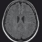 Neurologický aMR skríning pacientů s Crohnovou chorobou může zvýšit bezpečnost dlouhodobé terapie anti-TNF-α