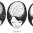 Androgenní alopecie žen