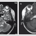 Návrh bezpečnostní MR monitorace upacientů s roztroušenou sklerózou léčených natalizumabem