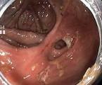 Léčba komplikované Crohnovy choroby vedolizumabem