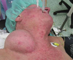 The Chest Wall Tumor as a Rare Clinical Presentation of Hepatocellular Carcinoma Metastasis