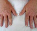 Systémová sklerodermie v roce 2017