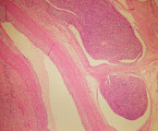 Intravenous leiomyomatosis as a rare tumor of myometrium
