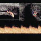 Dopplerovské ultrazvukové vyšetření cévního řečiště penisu v klinické praxi – základní principy pro urology