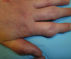 Psoriáza, psoriatická artritida a tofózní dna