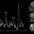 Současné možnosti <i>in vivo</i> protonové (<sup>1</sup>H) MR spektroskopie v diagnostice mozkového abscesu