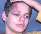 Infantilní hemangiomy z pohledu dermatologa