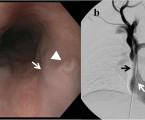 Bleeding 'downhill' esophageal varices associated with benign superior vena cava obstruction: case report and literature review