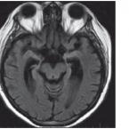 Autoimunitní encefalitidy– kazuistiky
