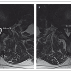 Význam morfologických a klinických klasifikací stenózy bederní páteře v předoperační rozvaze