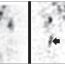 Detection of deep venous thrombosis on labeled leukocytes scan