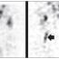 Obraz hluboké žilní trombózy při scintigrafickém vyšetření
