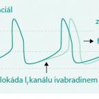 Současný pohled na ivabradin vléčbě kardiovaskulárních onemocnění