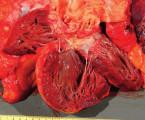 Truncus arteriosus communis sprežívaním 46 rokov: kazuistika