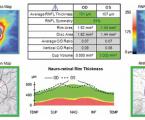 Měření vrstvy nervových vláken sítnice u pacientů s Alzheimerovou chorobou