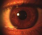 Refrakční chirurgie při myopické anizometropické amblyopii u dětí a srovnání s konzervativní léčbou kontaktními čočkami
