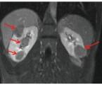 Tuberózní skleróza