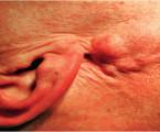 Revízna parotidektómia pre recidívu pleomorfného adenómu