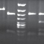 Pacient s homozygozitou mutácie E200K v rodine slovenského klastru genetickej formy Creutzfeldtovej-Jakobovej choroby