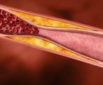Příznivý vliv Armolipidu Plus na hladinu cholesterolu a zánětlivé parametry u pacientů s chronickým subklinickým zánětem