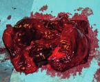 Subakutní tepenné krvácení po mastopexi s augmentací prsou implantáty: kazuistika