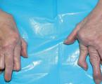 Revmatoidní artritida pro kardiologa